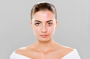 results of Blue light acne treatment